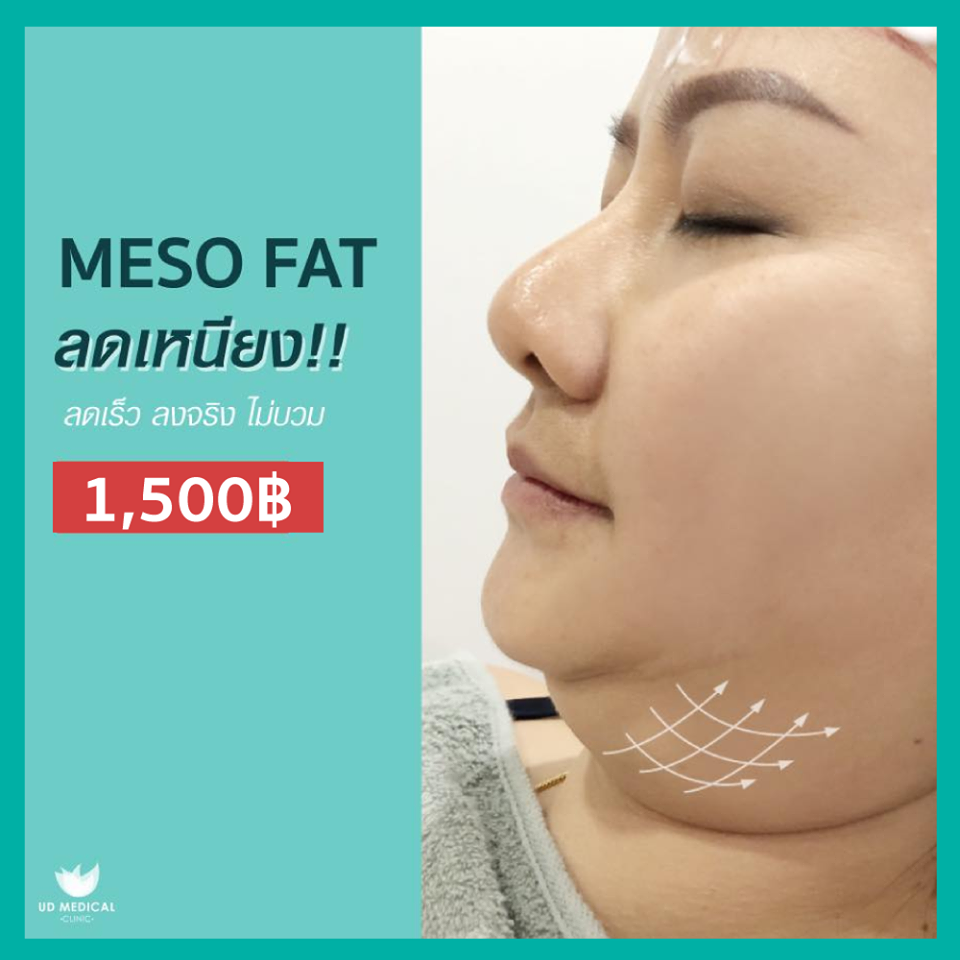 Meso Fat, reduce wattle !!! Fast reduction, not swelling